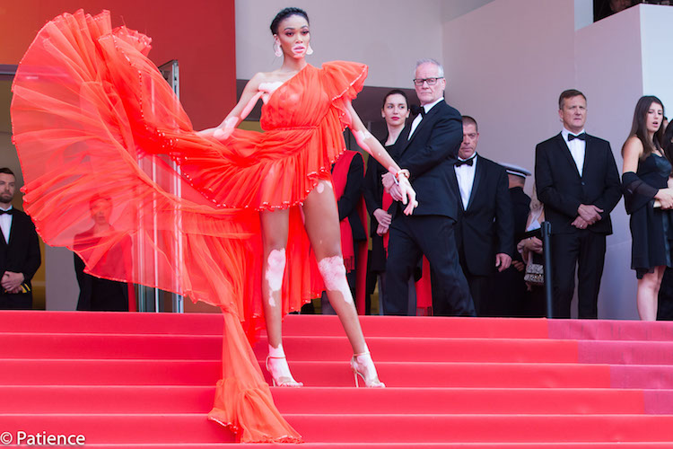 """Model Winnie Harlow fearlessly accentuated her vitiligo with a red-hot Jean Paul Gaultier piece and Jimmy Choo sandals on the """"Once Upon a Time ... in Hollywood"""" premiere red carpet at the 2019 Cannes Film Festival Tuesday, May 21. Photo: Patience Eding/Another Concept Magazine/Florida National News."""