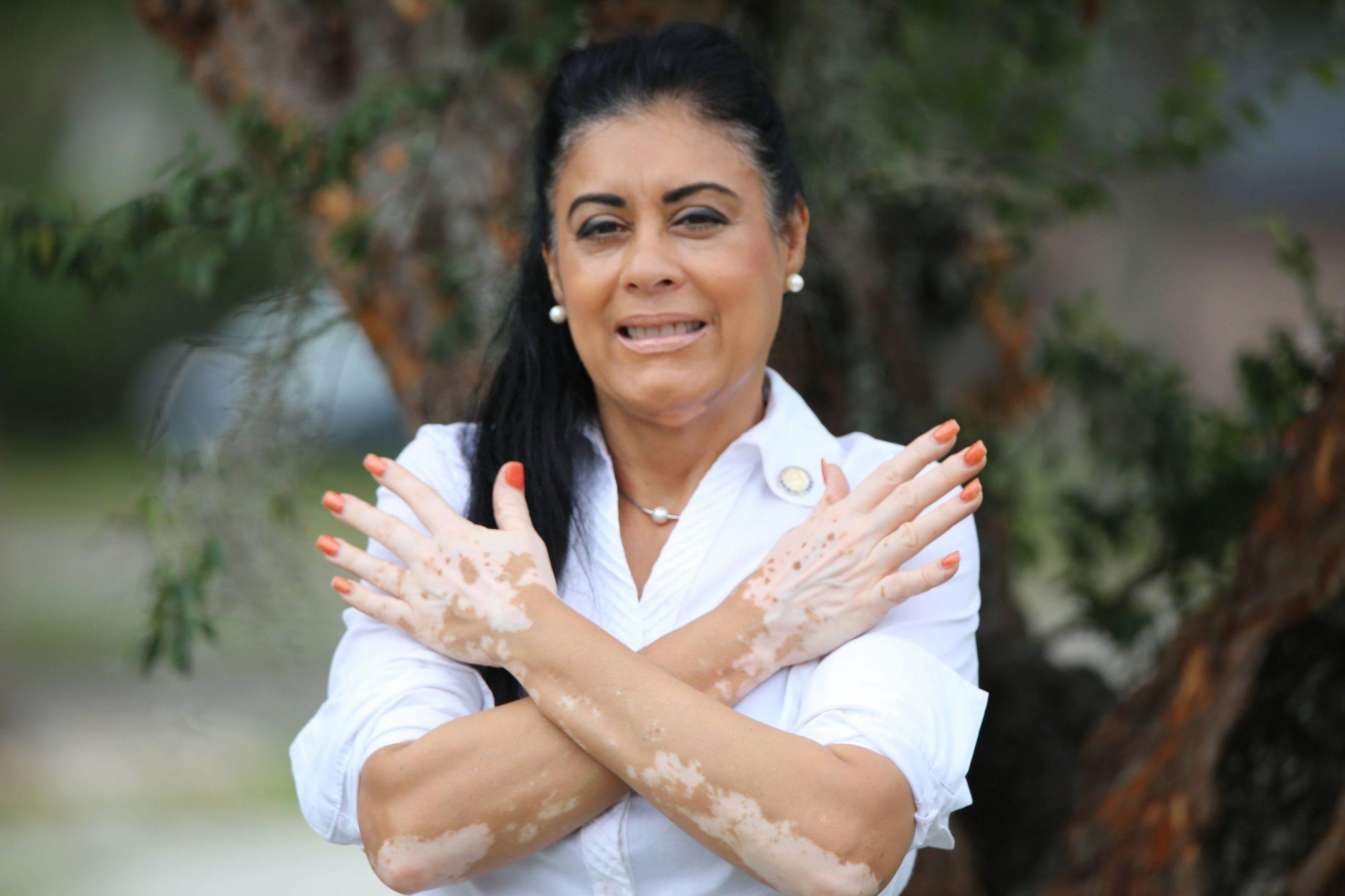 State Rep. Daisy Morales to Host Inaugural World Vitiligo Day Celebration at Orlando City Hall