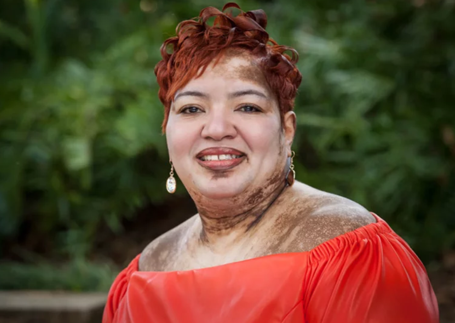 Tonja Johnson, Tampa chapter leader for Beautifully Unblemished, a vitiligo support group. Photo: Beautifully Unblemished.
